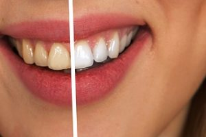 "Dangers of ""Do-It-Yourself"" Teeth Whitening"